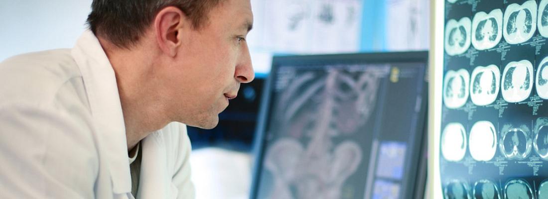 radiologist viewing xrays